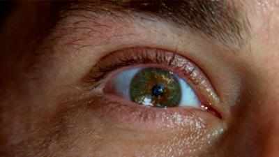 Daelis eye