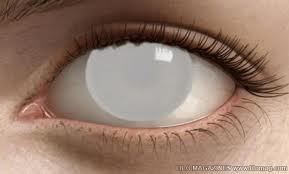 Feyis blind